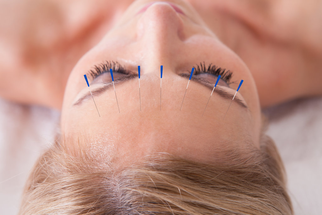 Acupuncture and Massage in Kerry