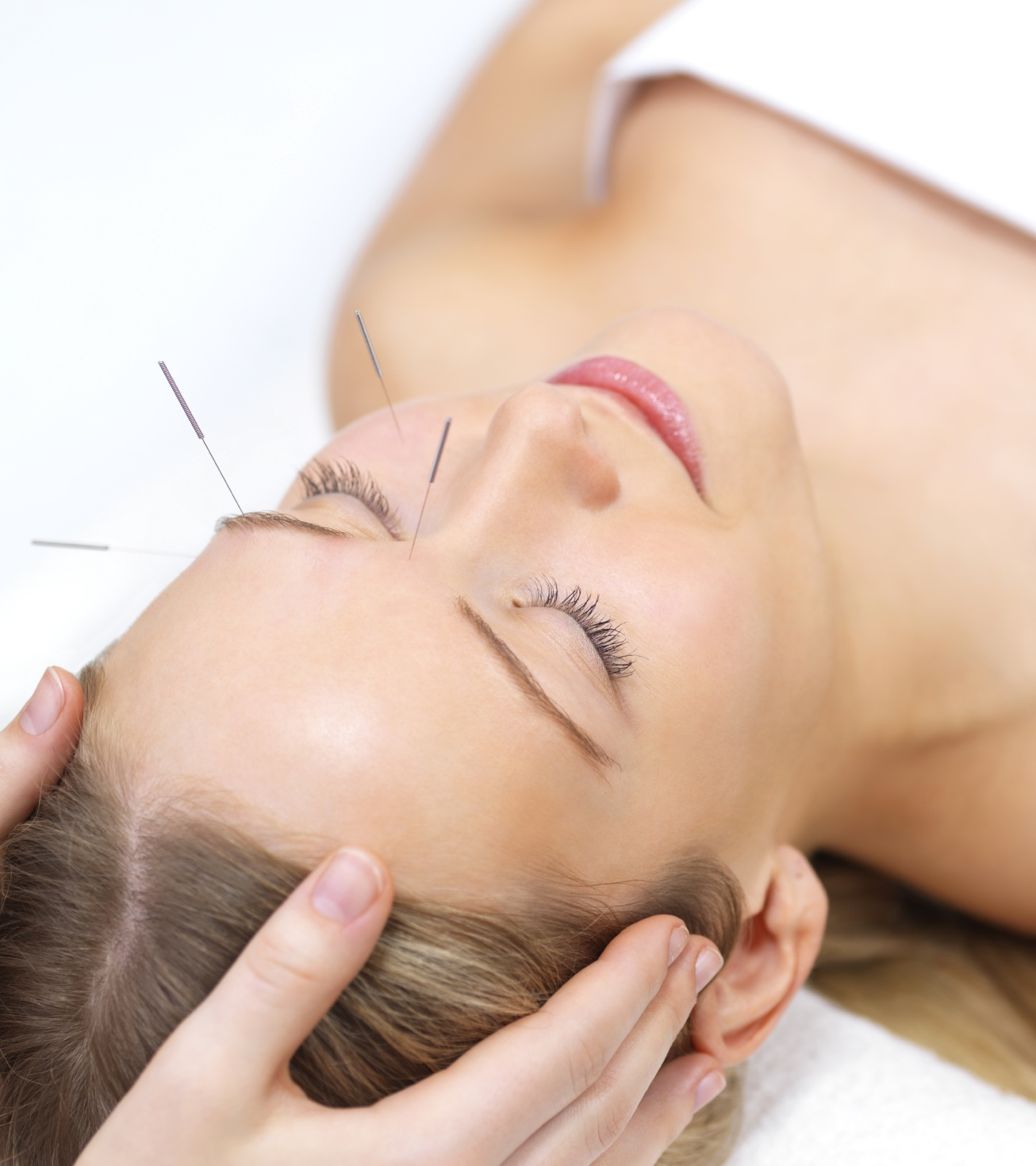 Acupuncture Treats Circulatory Diseases