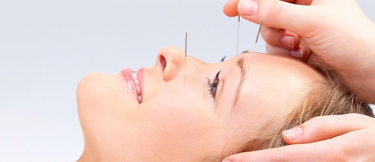 Acupuncture beauty Treatment in Tralee